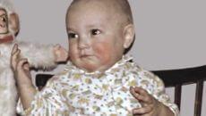 Золотуха у дитей: симптомы, лечение, причина заболевания