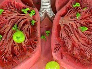 Какие заболевания характеризуются сухим кашлем?