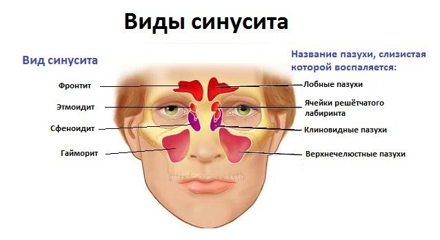 Описание болезни синусит