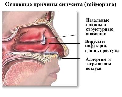 Причины возникновения гайморита